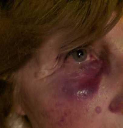 Brutal paliza a una mujer de 73 años para robarle